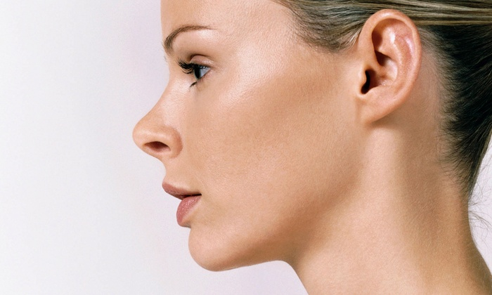 Bela Med Center - Outer Sunset: One or Two Non-Surgical Face or Neck Lifts at Bela Med Center (Up to 58% Off)