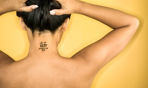 Erased Laser Tattoo Removal: Four Treatments for an Area of Up to 2, 4, 6, or 8 Square Inches at Erased Laser Tattoo Removal (Up to 78% Off)