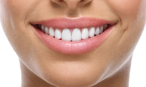 Arrgen 1 Limited: Dental Implant With Crown or Three-Unit Bridge for £999 at Dentcare1 Smile (Up to 59% Off)