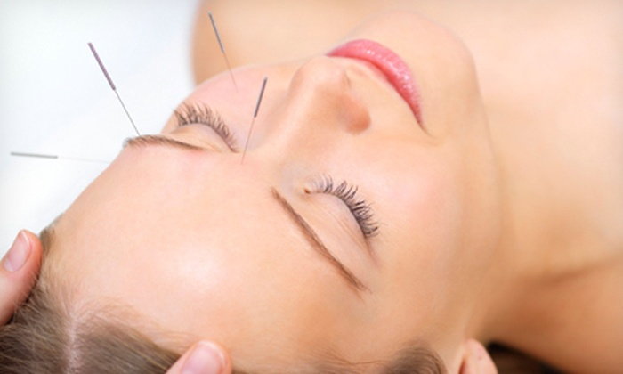 Integrated Holistic Medicine - Boca West: One or Three Acupuncture Treatments at Integrated Holistic Medicine (Up to 75% Off)