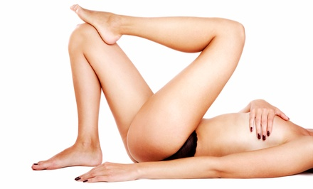 Six Laser Hair-Removal Treatments on a Small, Medium, or Large Area at Miami Laser Aesthetics (Up to 90% Off)