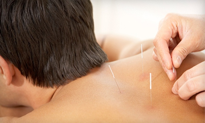 Clyne Chiropractic and Wellness - Greens Farms: One, Three, or Six Acupuncture Sessions at Clyne Chiropractic and Wellness (Up to 67% Off)