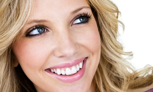 Bellissimo Salon and Day Spa: $99 for Three 15-Minute Teeth-Whitening Sessions at Bellissimo Salon and Day Spa ($229 Value)