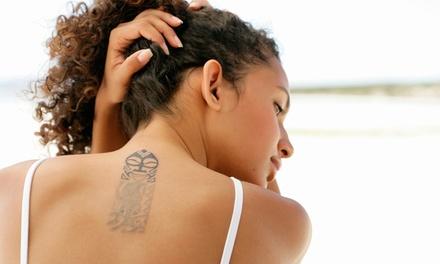 Wertgutschein über 35 €, 75 € oder 150 € für eine Tattoo-Entfernung bei Ink Paint