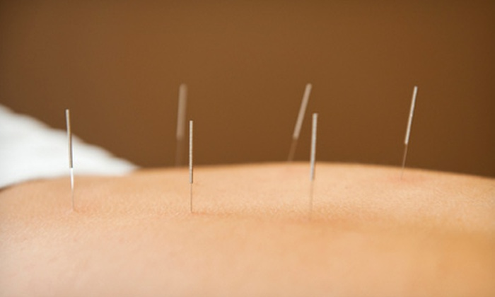 Sai Acupuncture & Herbal Clinic - Schenley Park: Initial Consult and Acupuncture with Optional Herbal Treatment at Sai Acupuncture & Herbal Clinic (Up to 52% Off)