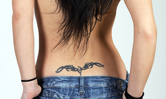Dr. Tattoff - North Dallas: Three Laser Tattoo-Removal Sessions on an Area of Up to 3, 6, or 8 Square Inches at Dr. Tattoff (Up to 67% Off)