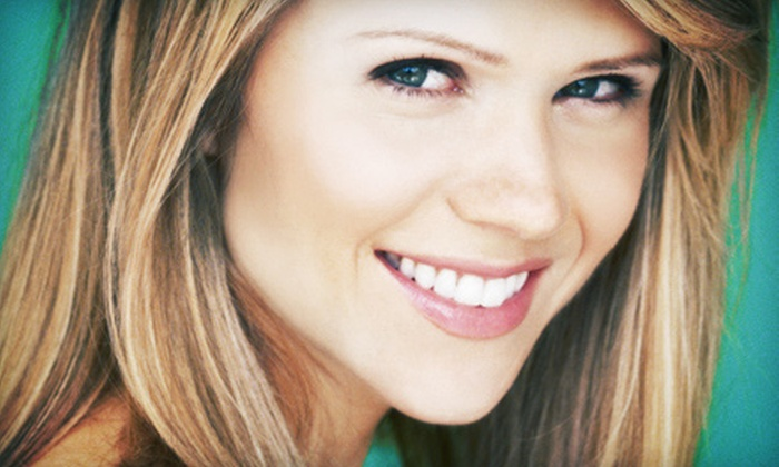 Smiles On The Run - Katy Mills: $79 for One In-Office Teeth-Whitening Session from Smiles On The Run ($299 Value)
