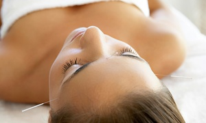 AcuSpa Wellness Center & Spa: $40 for anAcupuncture Treatment at AcuSpa Wellness Center & Spa (Up to $145 Value)