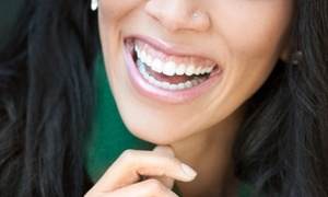 Platinum Dental Care: $39 for a New-Patient Dental Package with One Exam, X-rays, and Cleaning at Platinum Dental Care ($484 Value)