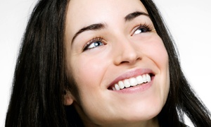 iConic Dental Care: $49 for a Dental Exam with X-Rays and Cleaning at iConic Dental Care ($159 Value)