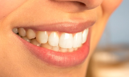 $39 for a Dental Exam, X-rays, and Basic Cleaning at Alpha Dental Group ($280 Value)