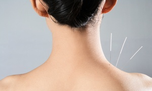 Hou Acupuncture Clinic: Consultation with One or Three Acupuncture Sessions at Hou Acupuncture Clinic (Up to 56% Off)