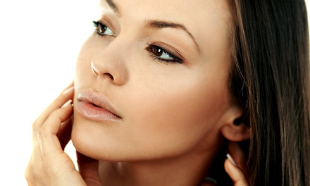 Consultation and Injection of Up to 20 or 40 Units of Botox at NuYu Aesthetic Medical Center (Up to 43% Off)