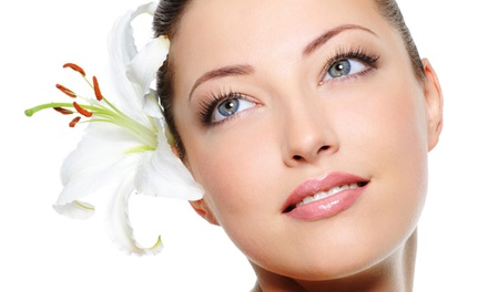 One, Two, or Three IPL Photofacial Treatments at Renew You Medical Spa and Laser Therapy (Up to 78% Off)