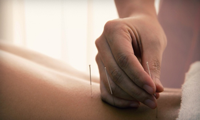 Lotus Medical & Health Clinic - Downtown San Rafael: One or Two Acupuncture Sessions with Consultation at Lotus Medical & Health Clinic in San Rafael (Up to 77% Off)