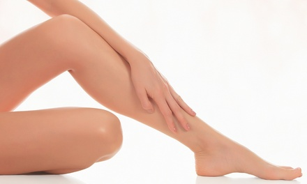Two or Four Vascular or Spider-Vein Laser Treatments  at White Orchid Rejuvenation Centre(Up to 68% Off)
