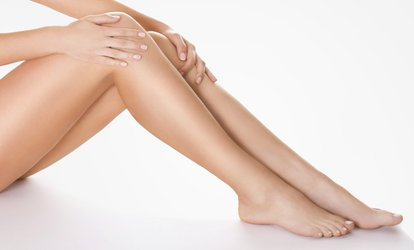 image for Spider Vein Removal at Carolina Health Practitioners @ Black Sheep Salon (Up to 53% Off). Three Options.