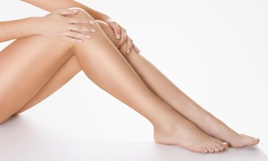 Carolina Health Practitioners @ Black Sheep Salon: Spider Vein Removal at Carolina Health Practitioners @ Black Sheep Salon (Up to 48% Off). Three Options.