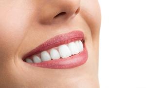 Boca@Boca: 1, 2, 3, 4, 5 o 6 implantes dentales de titanio con corona de porcelana y limpieza bucal desde 389 € en Boca@Boca