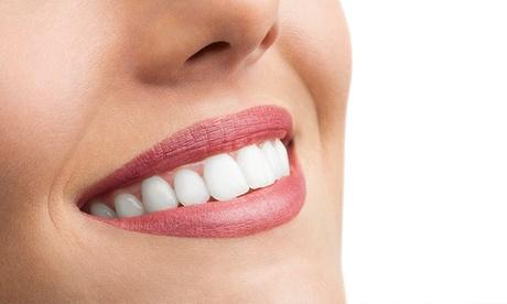 1, 2, 3, 4, 5 o 6 implantes dentales de titanio con corona de porcelana y limpieza bucal desde 389 € en Boca@Boca Oferta en Groupon