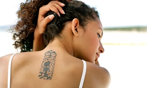 Tat2Removers.com: One, Three, or Six Laser Tattoo-Removal Sessions at Tat2Removers.com (Up to 72% Off)