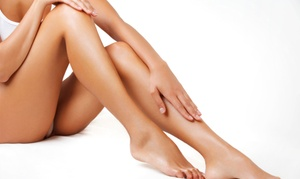 Medica Skin Clinic: Leg or Facial Thread Vein Treatment on Two Areas at Medica Skin Clinic (Up to 64% Off)