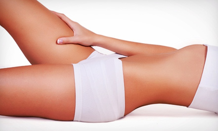Amerilaser Center - Multiple Locations: One, Two, or Three Venus Freeze Cellulite-Reduction Treatments at AmeriLaser Center (Up to 72% Off)