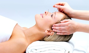 Hands & Needles Acupuncture: Acupuncture or Skin Rejuvenation Treatments at Hands & Needles Acupuncture (Up to 54% Off)