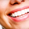 64% Off Zoom! Teeth Whitening