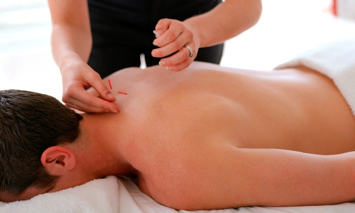 Whole Body Health And Wellness - Near North Side: One or Three Acupuncture Treatments with Consultation at Whole Body Health and Wellness (Up to 71% Off)