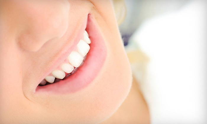 Secure Smiles - Beverly Hills: $1,499 for a Dental-Implant Package with Abutment and Crown at Secure Smiles ($3,630 Value)