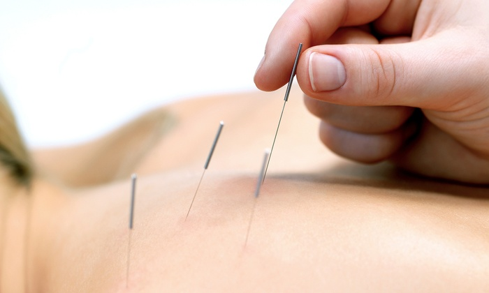 Arlington Acupuncture Clinic - Upper Arlington: One or Two Acupuncture Treatments with Initial Consultation at Arlington Acupuncture Clinic (Up to 63% Off)