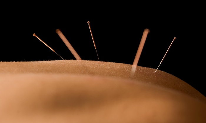 Canadian Institute of Alternative Medicine - South London: Up to 53% Off Neuro Functional Acupuncture at Canadian Institute of Alternative Medicine