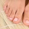 Up to $201 Off Toenail-Fungus Removal in Daly City