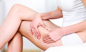 Nu Wellness Rejuvenation Center: One or Two Spider-Vein Treatments for One or Both Legs at Nu Wellness Rejuvenation Center (Up to 68% Off)