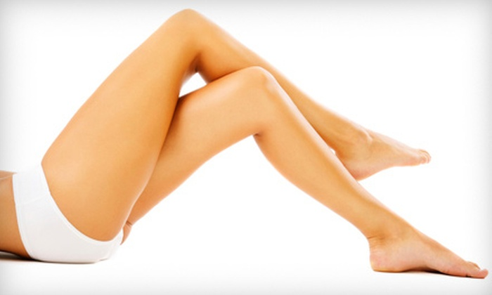 Body Medical Contouring - Johns Creek: One or Two Sclerotherapy Spider-Vein Treatments with One Consultation at Body Medical Contouring (Up to 70% Off)
