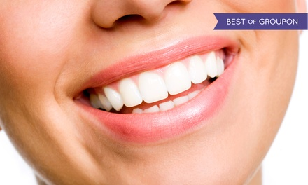 Two, Four, Six, or Eight Veneers with X-rays and Exam from Randall Voigt, D.D.S. (Up to 62% Off)