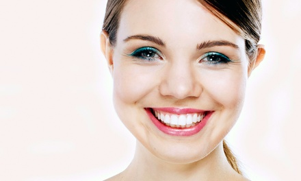 One or Three 30-Minute In-Office Teeth-Whitening Treatments at Sparklen White Teeth (Up to 57% Off)