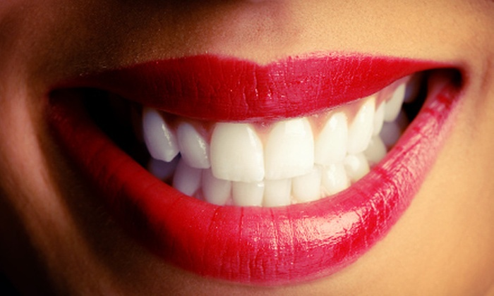 Dr. Byron L. Reintjes - fresno: $59 for a Custom Take-Home Teeth-Whitening Kit with Consultation and Impressions from Dr. Byron L. Reintjes ($250 Value)