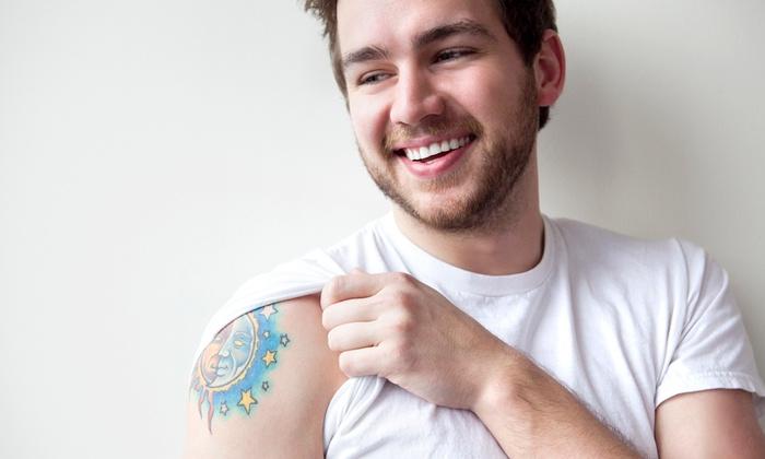 Indy Laser Tattoo Removal - Indy Laser Tattoo Removal | Groupon