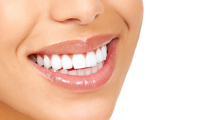 Why Your Teeth Hurt After Whitening and How to Prevent It