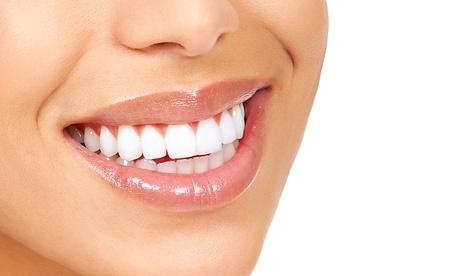Implantes de titanio y corona de metal porcelana con limpieza bucal desde 489 €