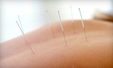 One Acupuncture Session (a $90 value) - Coastal Acupuncture  in Mount Pleasant