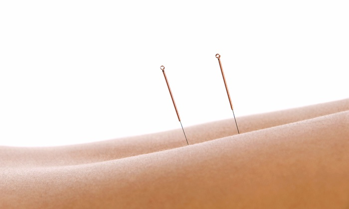 True Nature Acupuncture & Oriental Medicine - Broomfield: One or Three 60-Minute Acupuncture Sessions at True Nature Acupuncture & Oriental Medicine (Up to 67% Off)