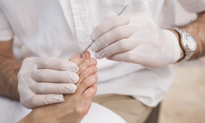 Chiropody: Laser Nail Fungus Treatment for €59 at Chiropody