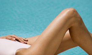 Luxe Clinic: Spider Vein Removal on a 5cm² ($99), 10cm² ($129) or 15cm² ($189) Area at Luxe Clinic (Up to $900 Value)
