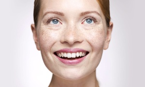 SkinRevite: One or Three Microdermabrasion Treatments with Mini Facials at SkinRevite (Up to 62% Off)