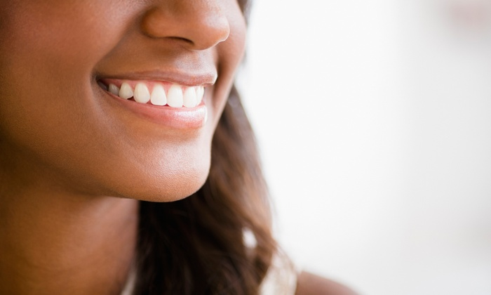 Brace Dental Services PC - Van Cortland Park West: Exam, Cleaning, and X-Rays or a Take-Home Teeth-Whitening Tray from Brace Dental Services PC (Up to 80% Off)