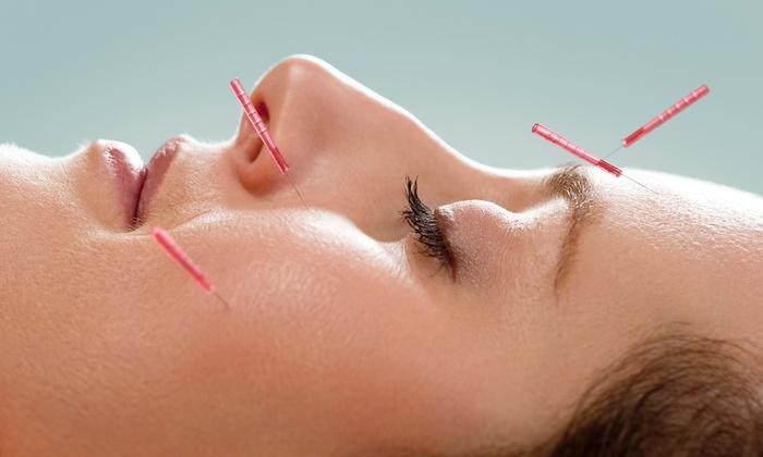 Curious facial rejuvenation acupuncture boulder charming message