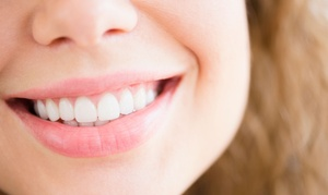 Studio Dentistico ed Estetico Dr. Scerra Armonia del viso: Pulizia denti, smacchiamento air flow, otturazione e sbiancamento led allo studio Armonia del viso (sconto fino a 87%)